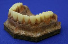 歯科向け口腔模型